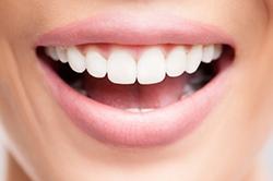 gum bone grafts 166637260